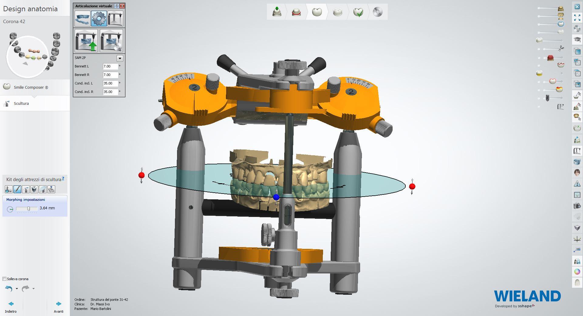 Articolatore virtuale.